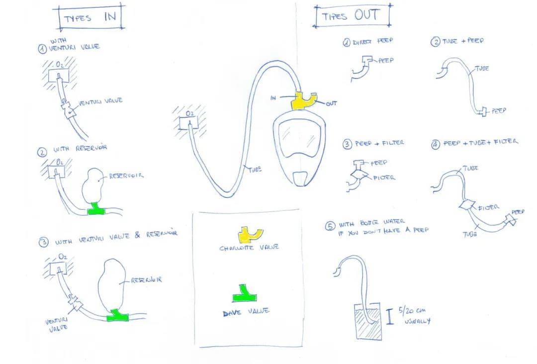 厉害了!3D打印组件改装迪卡侬潜水面罩变呼吸机面罩插图3