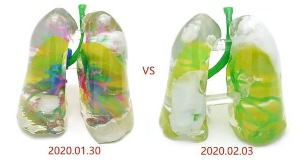 1588841462-298d1960d452451.jpg-插件-3D打印新冠肺炎患者肺脏实体模型