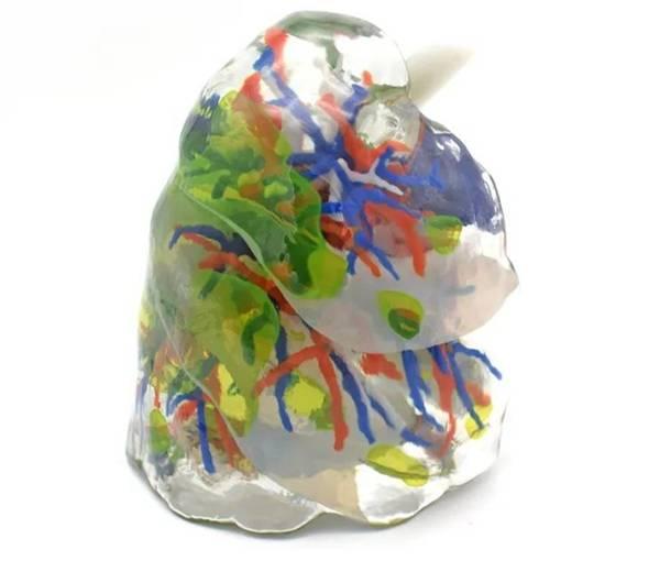 1588841462-310f37cbfb9c6fd.jpg-插件-3D打印新冠肺炎患者肺脏实体模型