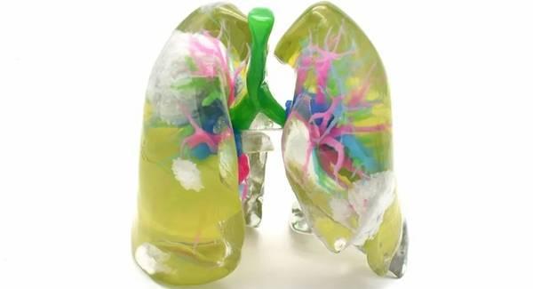 1588841462-3234a95675646c9.jpg-插件-3D打印新冠肺炎患者肺脏实体模型
