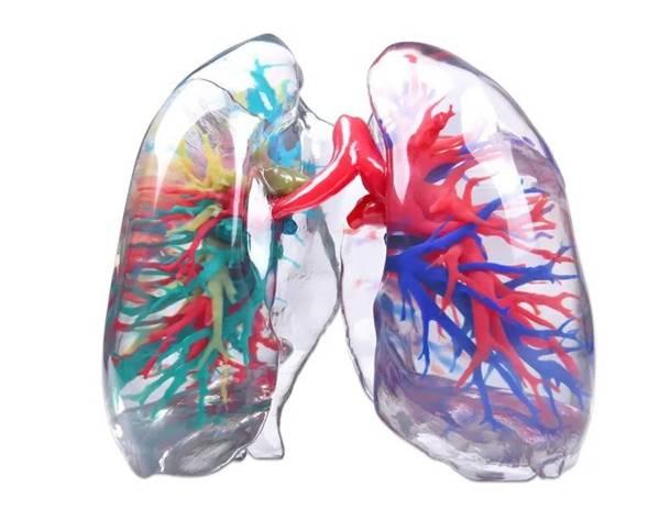 1588841462-97cf2bce307a659.jpg-插件-3D打印新冠肺炎患者肺脏实体模型