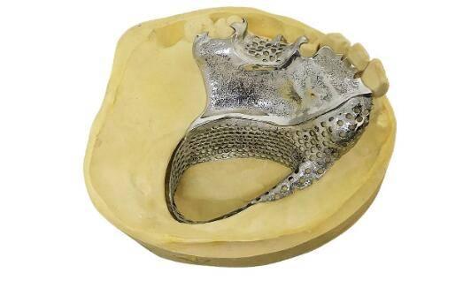 """3D打印""""可摘""""义齿口腔流程插图1"""