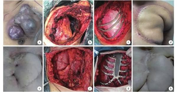 全部病人均应用3D打印钛金属胸肋骨假体对胸骨破损开展复建插图3