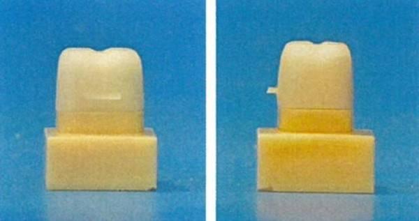 法国发布3D打印龋齿填充树脂插图3