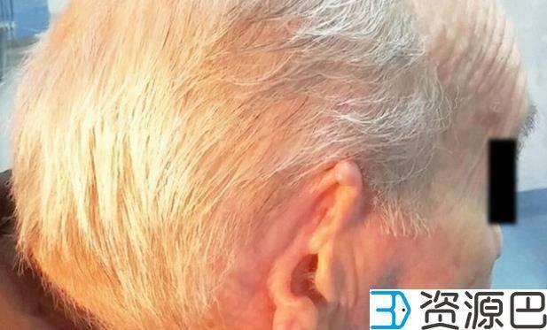 医生借助3D打印 恢复癌症患者被切除的耳朵插图1