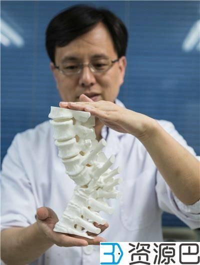 3D技术打印脊椎,助六旬婆婆抬起头插图1