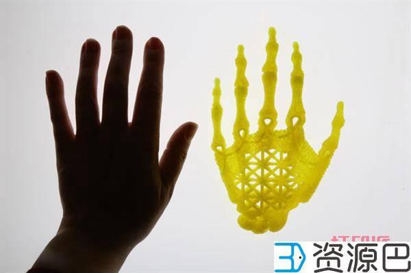 1598407275-9bac37655dc73cd.jpg-插件-艺术家正用3D打印支架和干细胞长出一只人手
