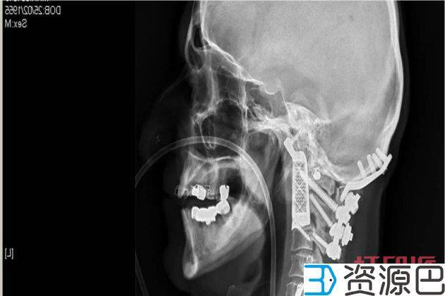 1598666469-484816623d74152.jpg-插件-世界首例人头分离手术成功,3D打印医疗新里程