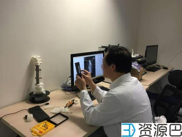 中国完成全球首例人工3D打印脊椎植入手术插图1