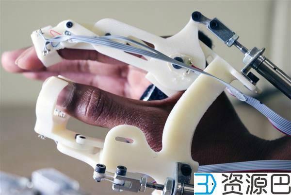 科学家借助3D打印开发用于脑瘫早期检测的触觉手套插图1