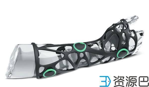 不怕挂彩!时尚感爆棚的3D打印手臂矫正器插图1