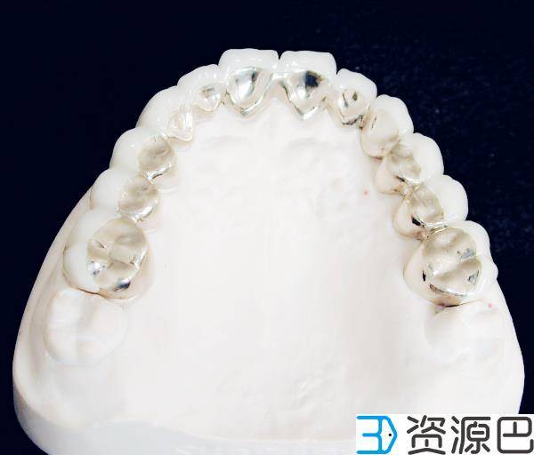 3D打印义齿优势何在?一张图告诉你插图3