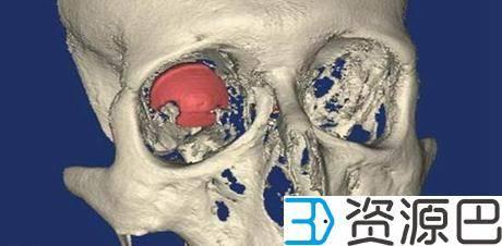 比利时眼科专家为一患者打造出世界上第一个3D打印义眼插图5