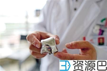 世界首例3D打印全距骨假体在重庆成功植入进人体插图3