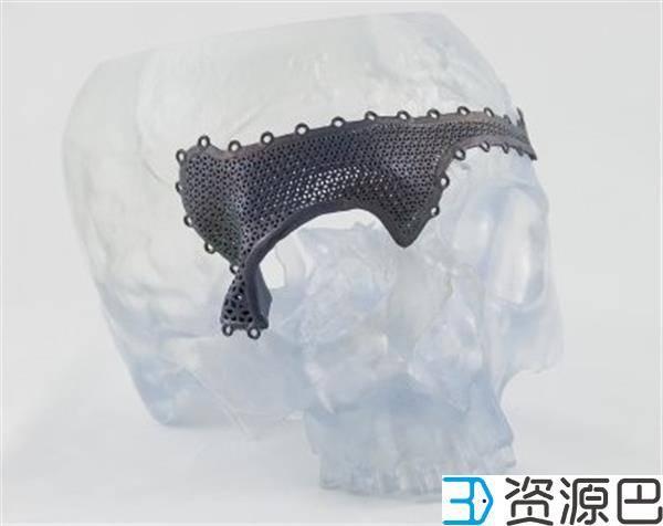 强生子公司在欧洲推出定制化3D打印颌面植入物插图1