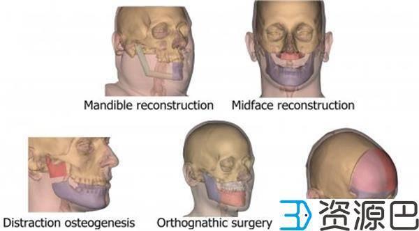 强生子公司在欧洲推出定制化3D打印颌面植入物插图3