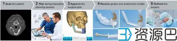 强生子公司在欧洲推出定制化3D打印颌面植入物插图5