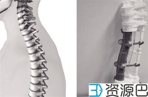 全球首个3D打印人工椎体植入手术成功 开启人工椎体时代插图1