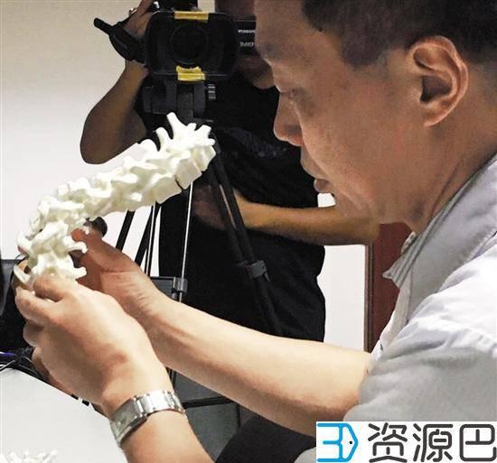 3D打印脊椎助14岁马凡氏综合征患者重获新生插图1