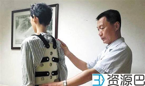 3D打印脊椎助14岁马凡氏综合征患者重获新生插图3