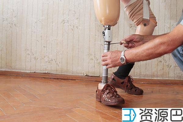 1614045643-5f82c0dc75f79fe.jpg-插件-德国研究人员为战区伤员开发低成本3D打印假肢