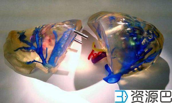 3D打印技术在医学中的应用 救死扶伤有功劳插图3