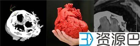 Jump交易所拨款千万美金为病人免费3D打印心脏插图1