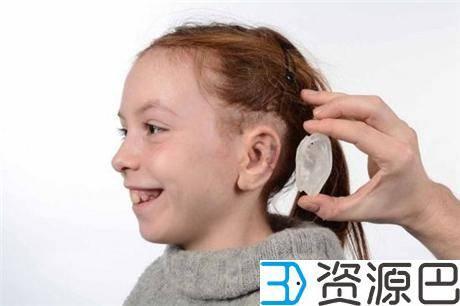 1617760871-362ddd93a7d846d.jpg-插件-3D扫描及打印让小耳症患者重获自然耳朵