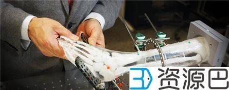 1617933665-c0fe1fdce42a773.jpg-插件-3D打印技术为马蹄内翻足矫正手术提供更好的解决方案