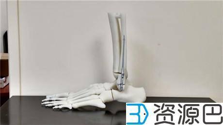 1620266466-61448563addd8e0.jpg-插件-3D打印帮助Sonoma开发出更快速先进的骨折修复手术
