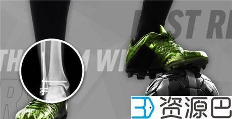 1620266466-62ee4a81d061438.jpg-插件-3D打印帮助Sonoma开发出更快速先进的骨折修复手术