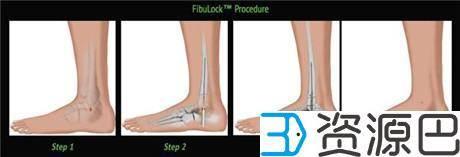 1620266466-65b44b0c5be0a39.jpg-插件-3D打印帮助Sonoma开发出更快速先进的骨折修复手术